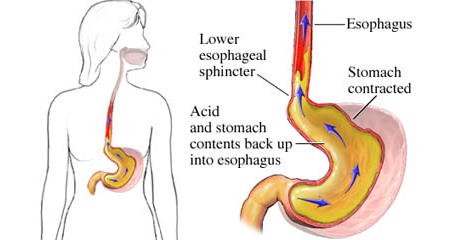 acid-reflux-cures-cyprus